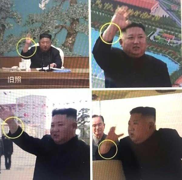 حدس درباره اینکه رهبر کره شمالی بدل دارد