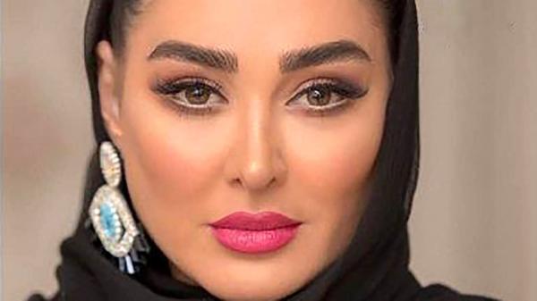 واکنش مردم به عمل زیبایی الهام حمیدی ، اعتراف خانم بازیگر !